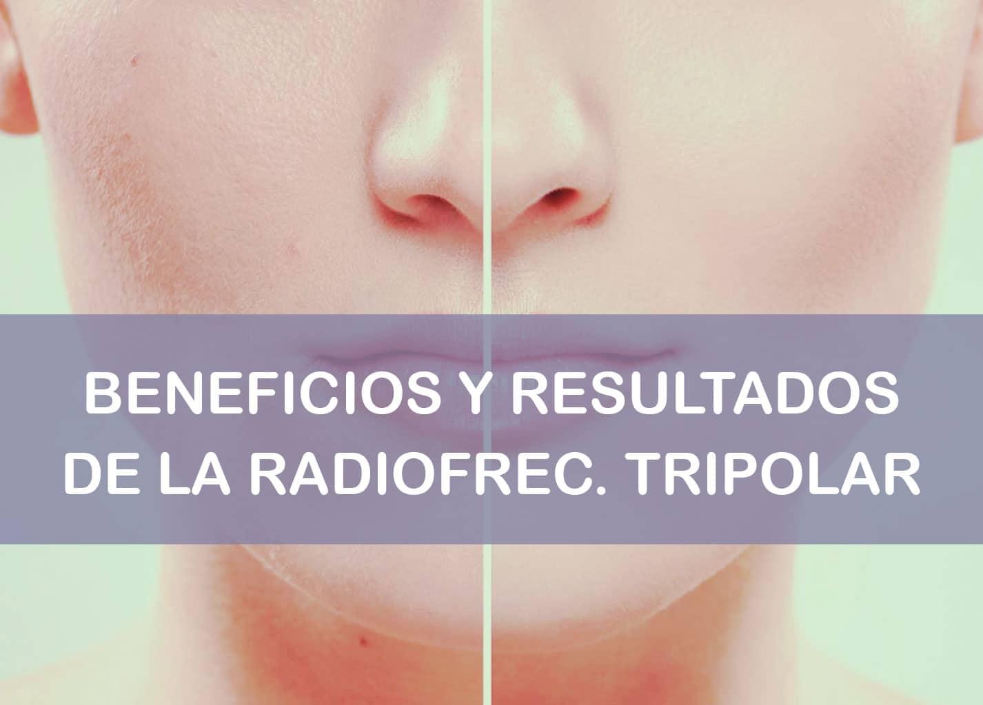 Beneficios y resultados de la radiofrecuencia tripolar