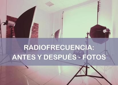 Radiofrecuencia antes y después fotos