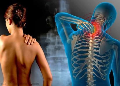 Radiofrecuencia dolor lumbar