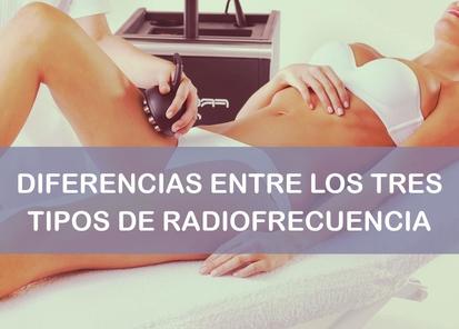 Radiofrecuencia monopolar, bipolar y tripolar
