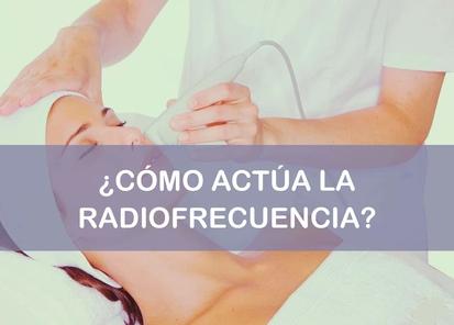 la radiofrecuencia como actua