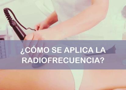 la radiofrecuencia como se aplica