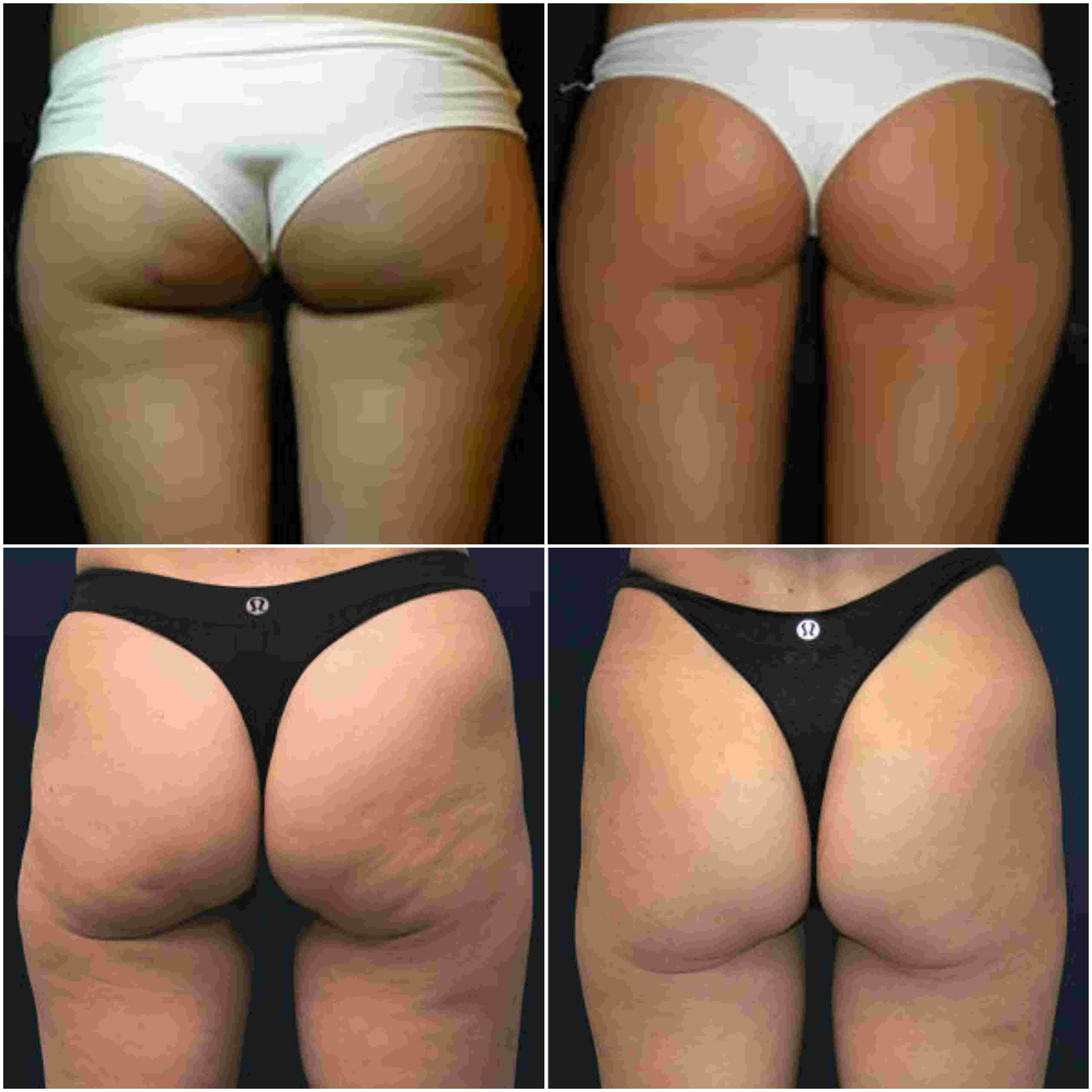 radiofrecuencia corporal antes y después fotos
