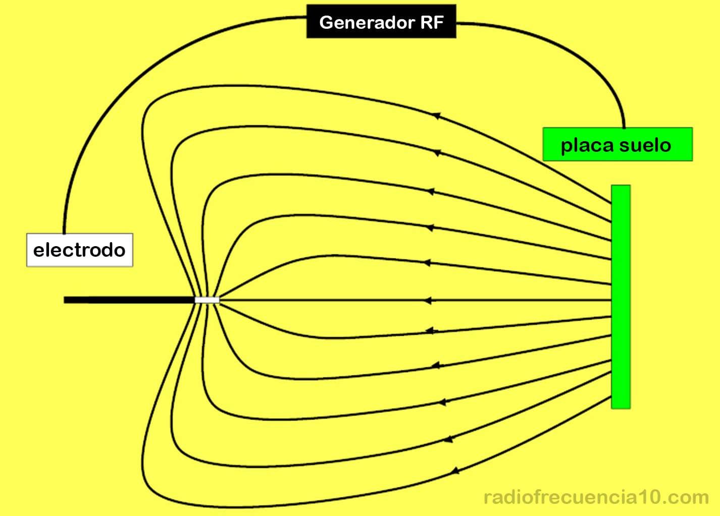 radiofrecuencia de terminaciones nerviosas