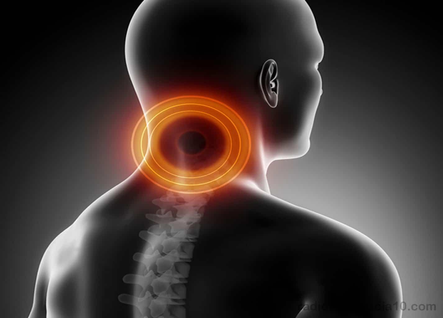 radiofrecuencia dolor de cuello