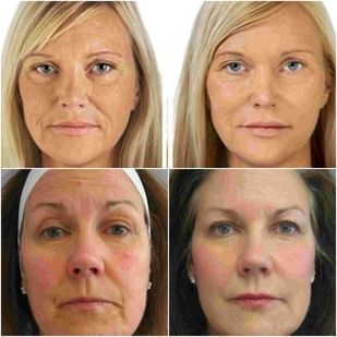 radiofrecuencia facial antes y despues fotos